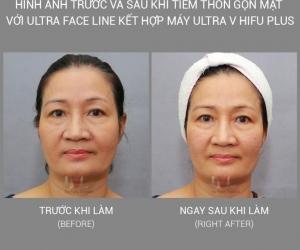 Tiêm thon gọn mặt với Ultra Face Line kết hợp với máy Ultra V Hifu Plus