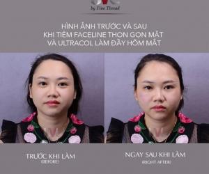 Trẻ hóa gương mặt với Filler Bột Chỉ Pdo Ultra Col