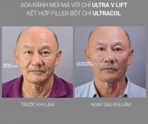 Xóa rãnh mũi-má bằng Công nghệ UVL