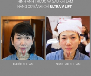 Kết quả thẩm mỹ Chỉ Ultra V Lift
