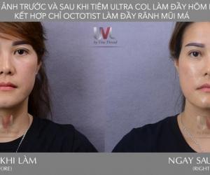[04/2019] Chuyển giao Công nghệ UVL tại Tp.HCM