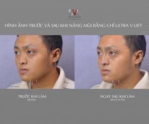 [06/2019] Chuyển giao Công nghệ UVL tại Tp.HCM