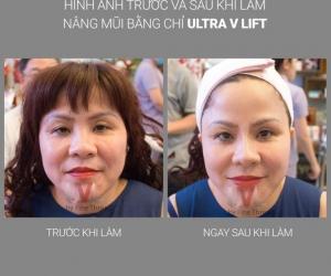 Nâng mũi bằng Công nghệ UVL