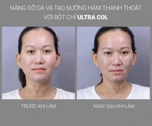Kết quả nâng mũi bằng chỉ Ultra V Lift